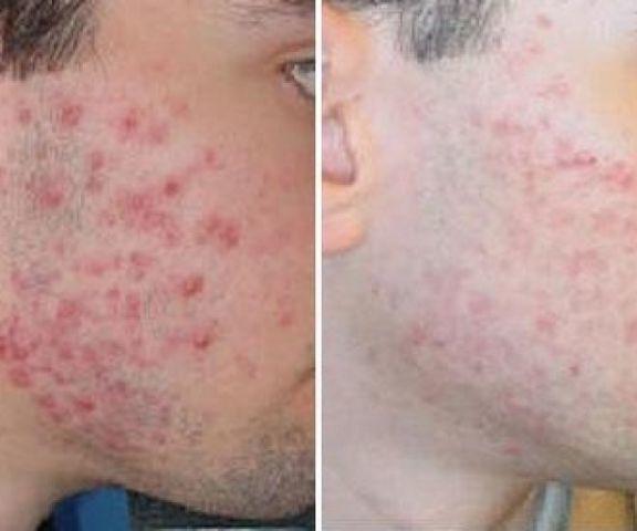 Лечение морщин и угревой сипи
