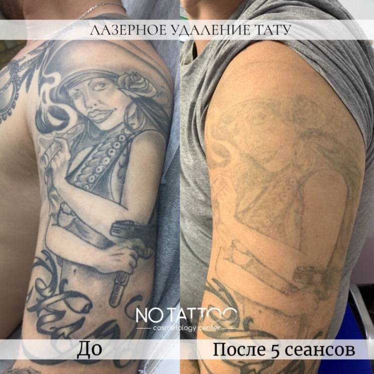 Лазерное удаление тату и татуажа наносекундным и пикосекундным лазерам