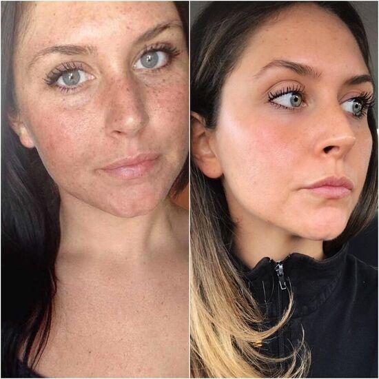 Крем для отбеливания кожи лица и тела. Для осветления кожи вокруг глаз